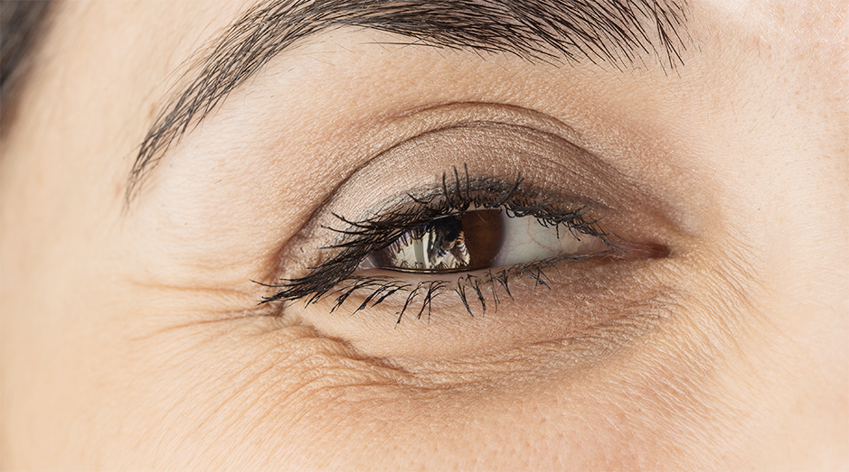 What Causes Wrinkles?